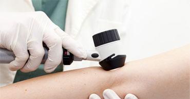 Hautkrebs Vorsorge Untersucheung